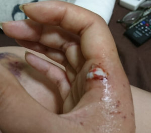 猫に噛まれた 何科 病院 処置方法